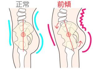 四国中央市でセルライトケアをするTRESORの骨盤の解説